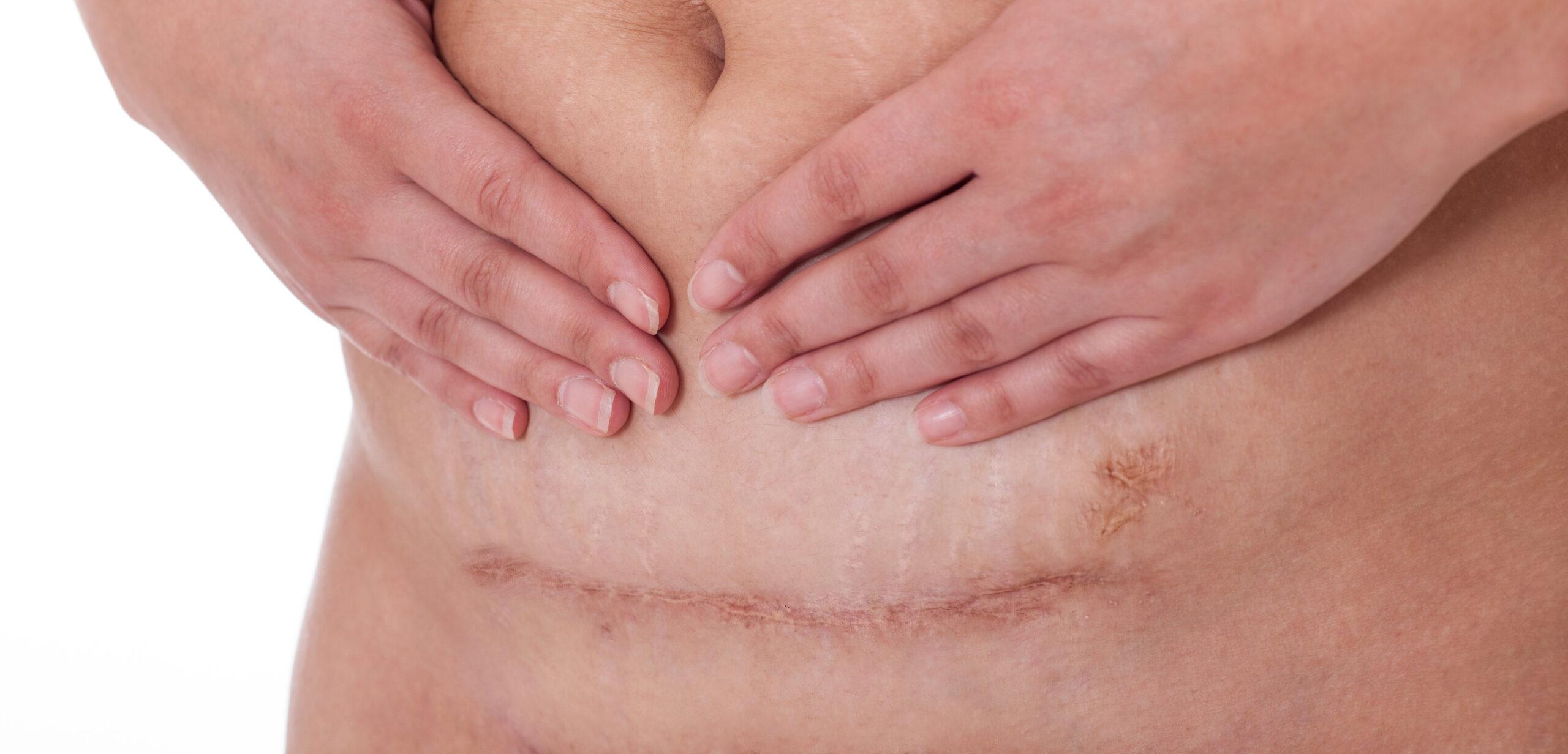 Tips Penjagaan Bersalin Czer cesarean Pembedahan Pengalaman Sendiri 11 tahun Lepas