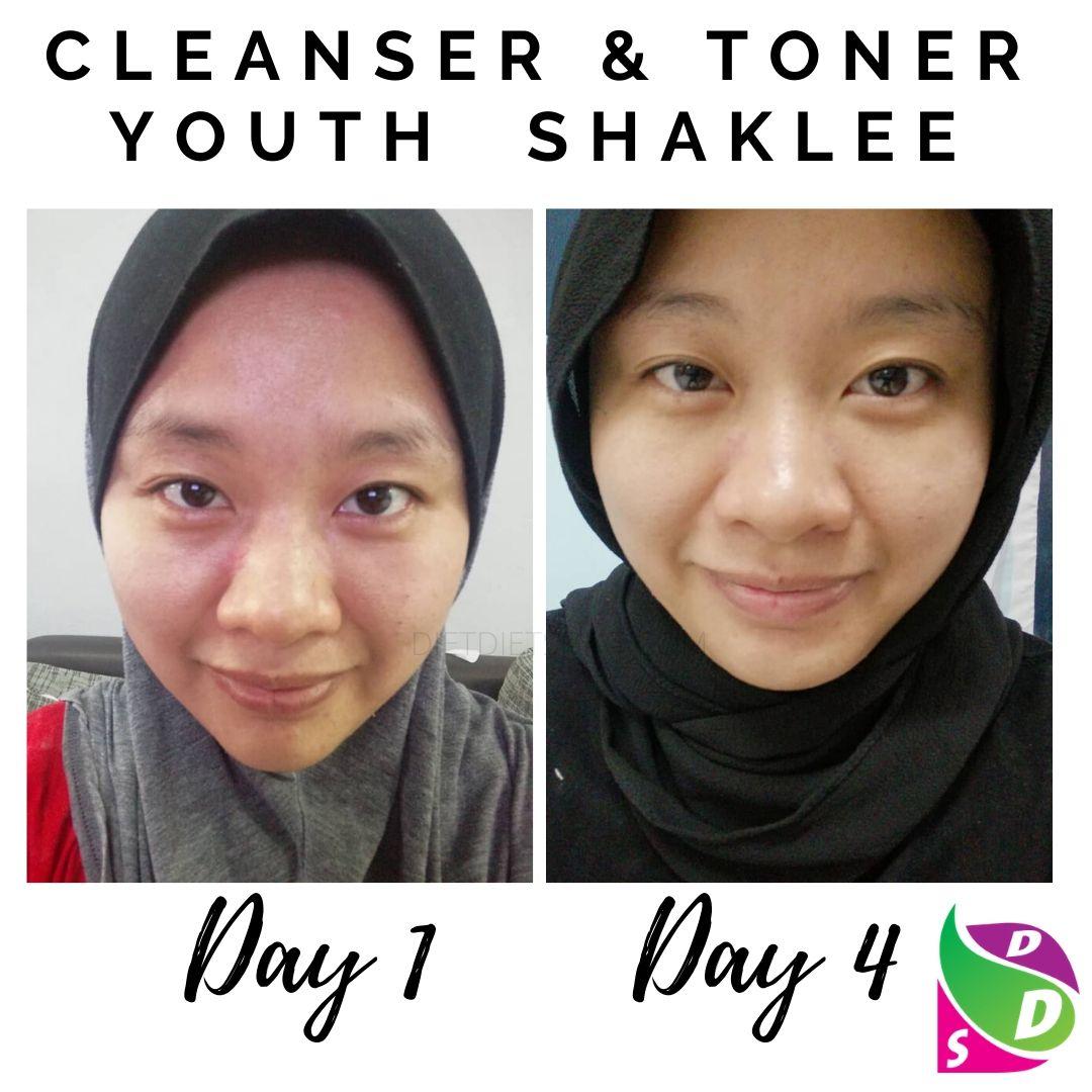 4 Hari Kulit Glowing Putih Dengan Cleanser Toner Youth Shaklee